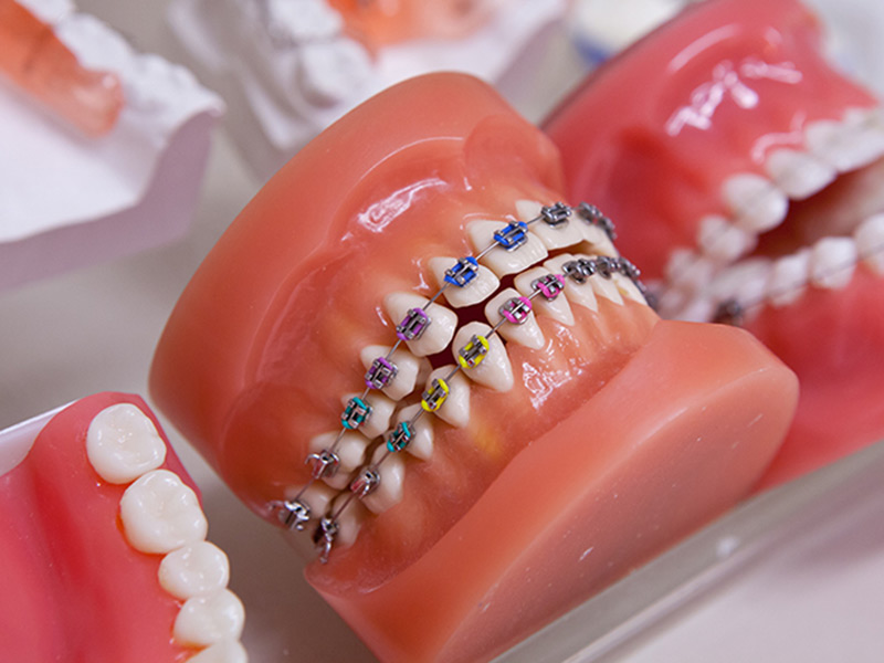 ortodoncia-adultos-ninos_clinica_mallorca_dentista2jpg