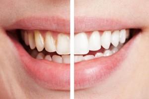 Tratamientos_dentales_clinica_mallorca_dentista