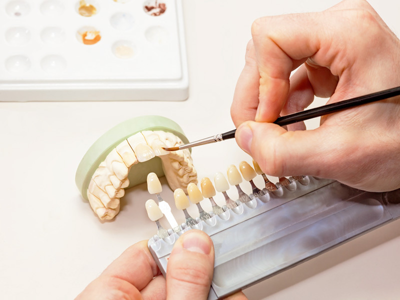 estetica_dental_clinica_mallorca_dentista