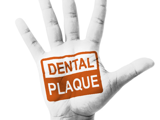 placa_dental_clinica_mallorca_dentista