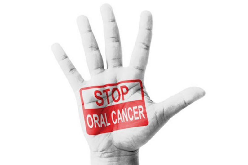 CANCER ORAL BLOG