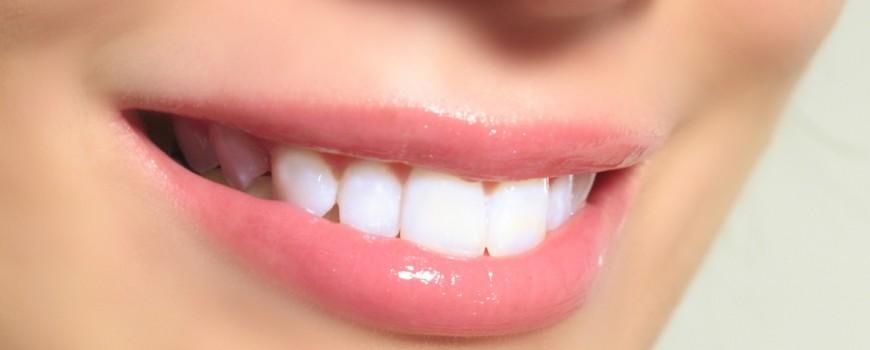 los-dientes-en-verano